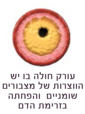 doctor_michael_jonas_israel_biodegradable-stent-explanation6